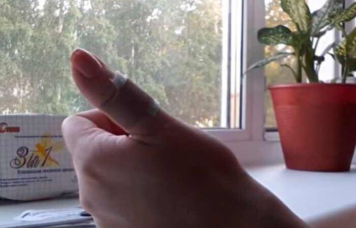 Медики рассказали, как быстро остановить кровь, если вы порезались