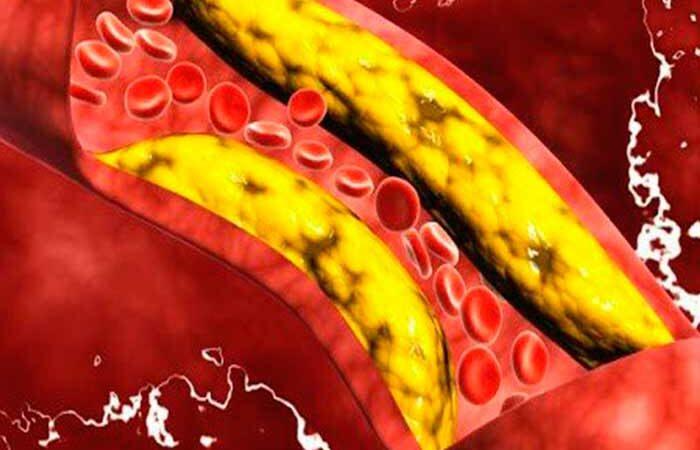 Найден способ быстро очистить кровь от излишков жира