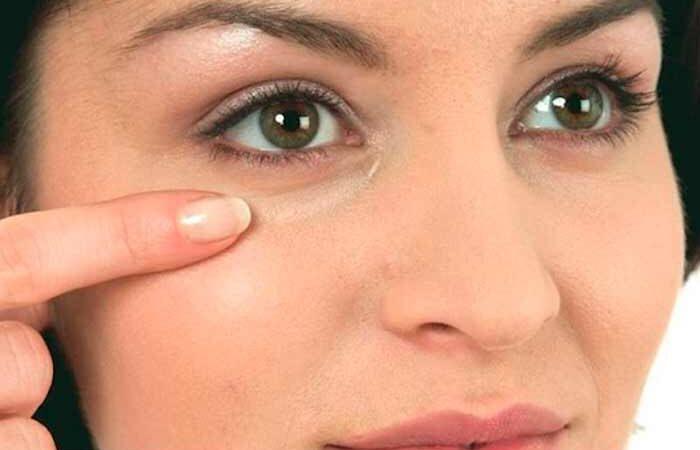 Самые лёгкие способы избавиться от отёков под глазами в домашних условиях